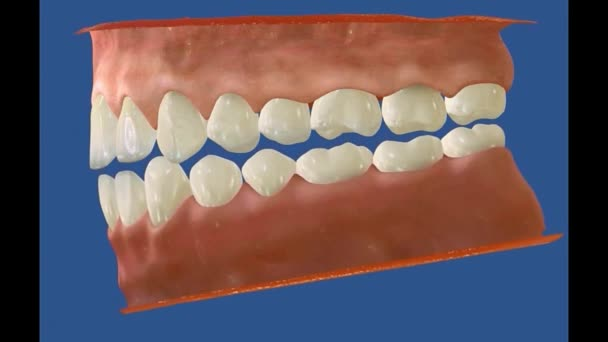 3D zubní video - stoličky - zuby moudrosti 12