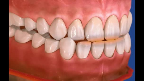 3D Dental Video - Backenzähne - Weisheitszähne 5