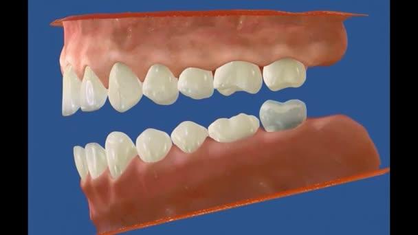 3D-Zahnvideo - Backenzähne - Weisheitszähne 13