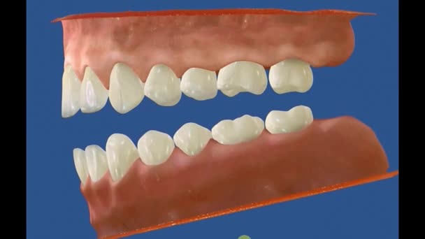 3D Dental Video - molars - wisdom teeth 14