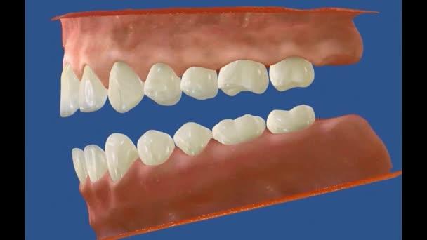 3D-Zahnvideo - Backenzähne - Weisheitszähne 17