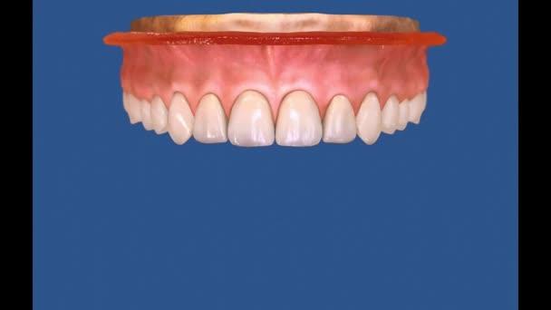 3D Dental Video - molars - wisdom teeth 20