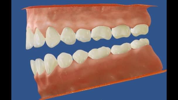 3D zubní video - stoličky - zuby moudrosti 16