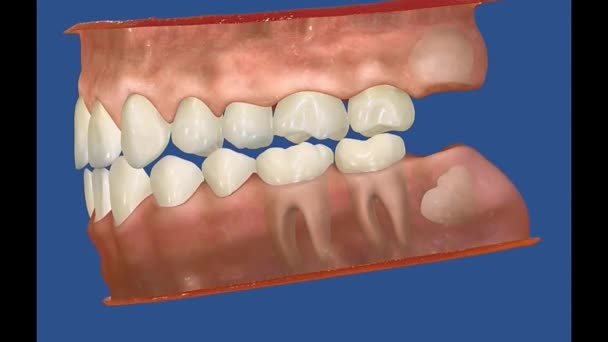3D Dental Video - Backenzähne - Weisheitszähne 23