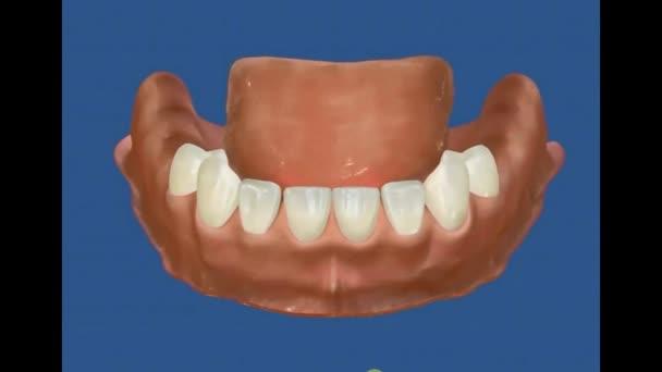 Dental 3D Video - implantology - dental implant 21