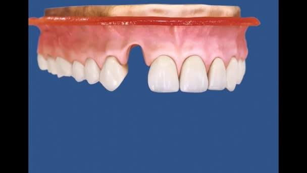 Zubní 3D video - implantologie - zubní implantát 56