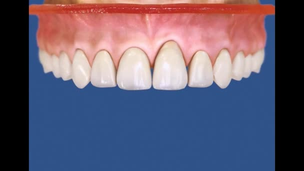 Dental 3D Video - implantology - dental implant 57