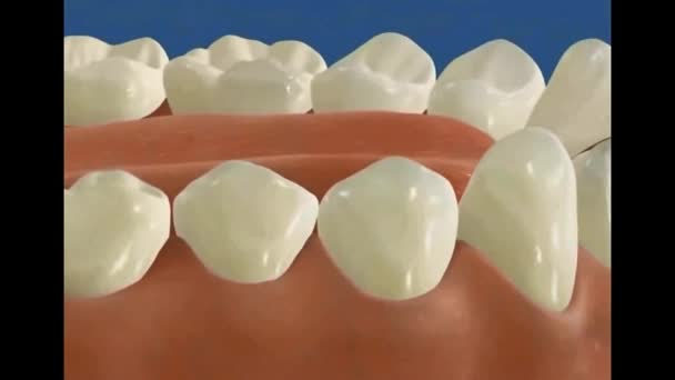 Dental 3D Video - Implantologie - Zahnimplantat 2