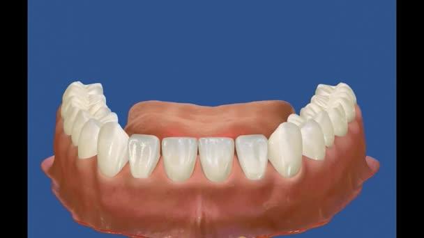 Dental 3D video - Full restoration - Dental surgery 5