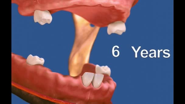 Dental 3D video - Dental Hygiene 5