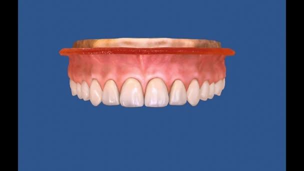 Dental 3D video - Dental Hygiene 12