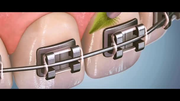 Dental 3D video - Dental Hygiene 16
