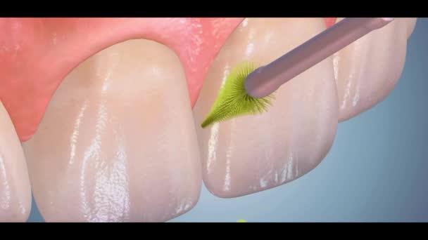 Dental 3D video - Dental Hygiene 15