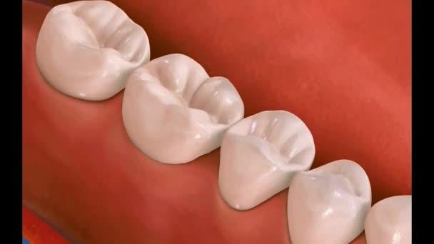 Dental 3D video - Dental Hygiene 20
