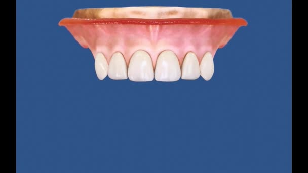 Dental 3D Video - Upper Posterior 1