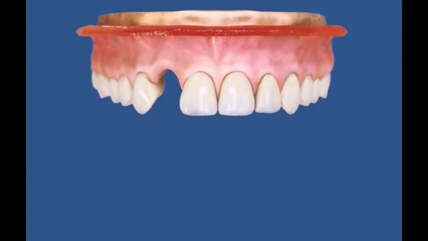 Dental 3D Video - 2 laterals 1A