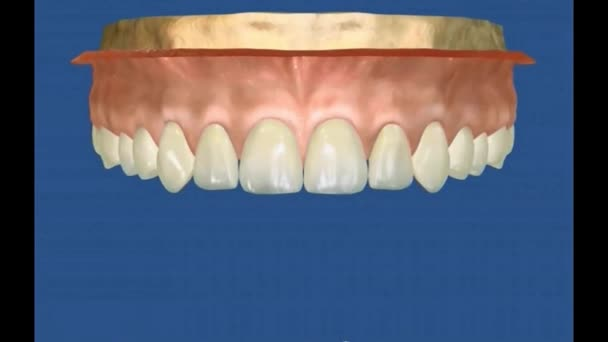 Dental 3D Video - Periodental -Periodontal 22