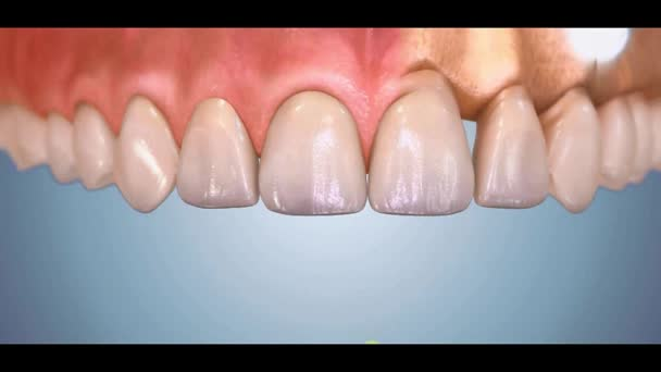 Zubní 3D video - Periodental -Periodontal 21