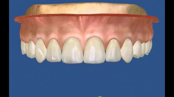 Zubní 3D video - Periodental -Periodontal 24