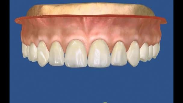Dental 3D Video - Periodental -Periodontal 24