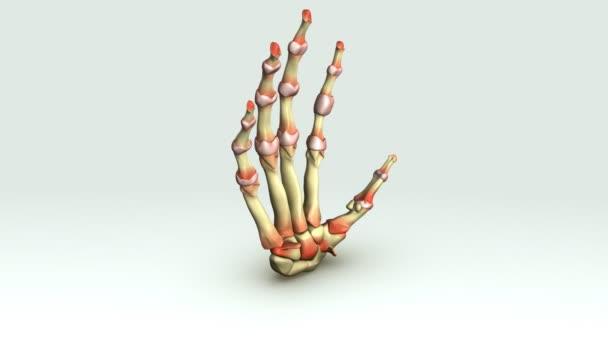 Muestra de la mano de la artritis reumatoide — Vídeos de Stock ...