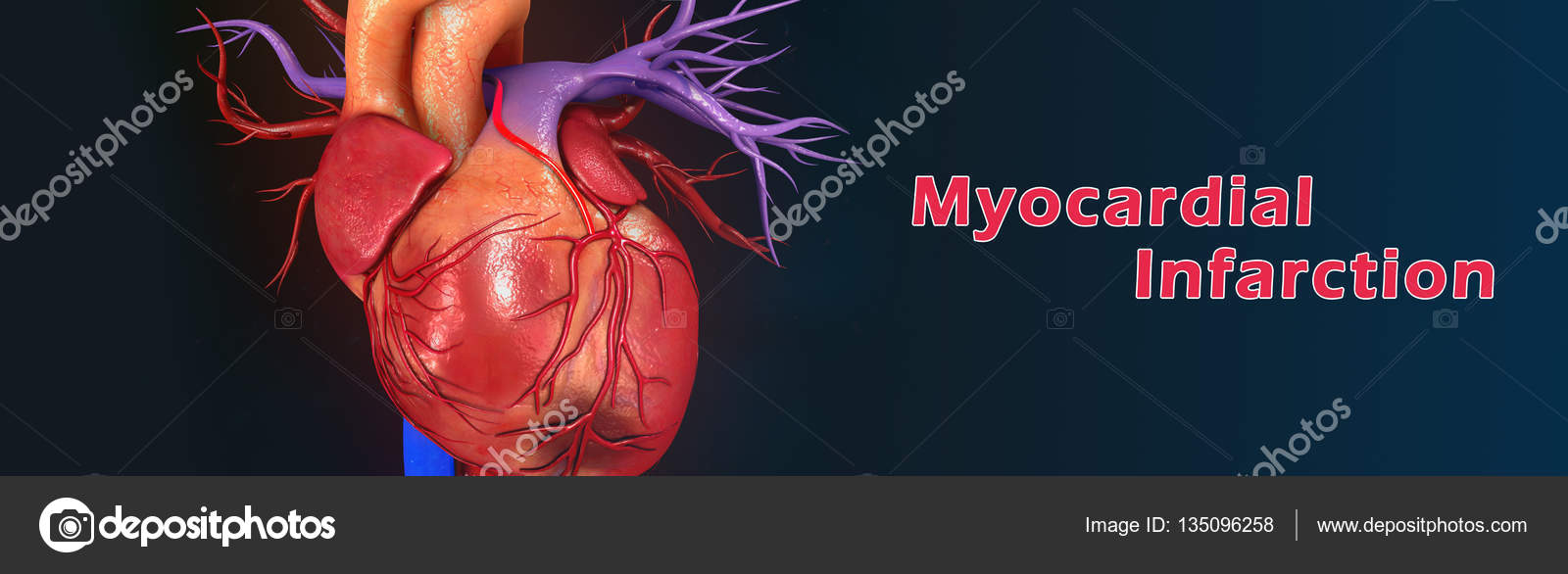 Heart Myocardial Infarction — Stock Photo © sciencepics #135096258