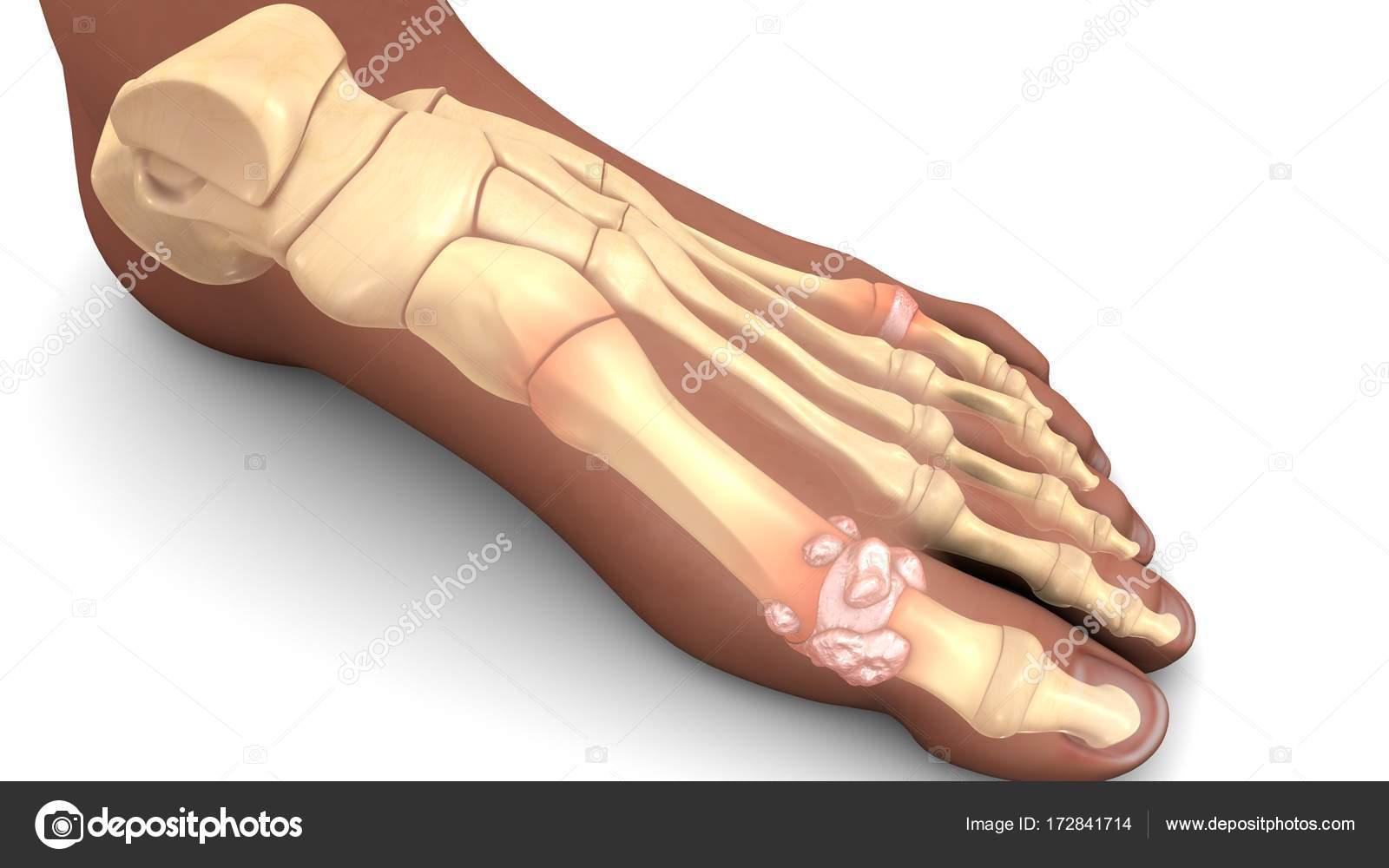 huesos del pie humano — Foto de stock © sciencepics #172841714