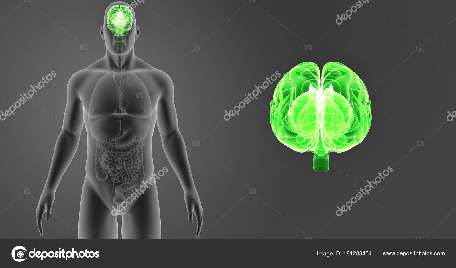 Cerebro con vista anterior del cuerpo — Fotos de Stock © sciencepics ...