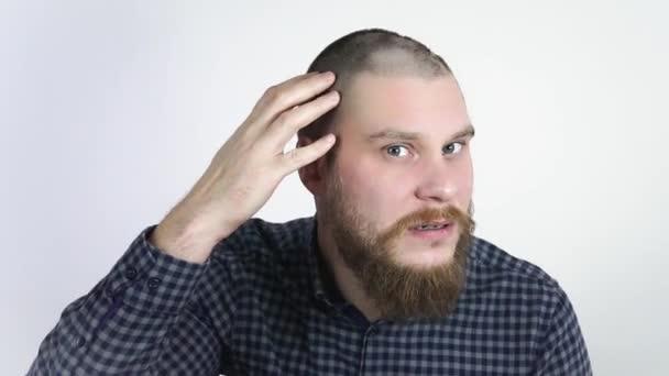 Lidská alopecie nebo vypadávání vlasů.Dospělý muž ruka ukazuje svou holou hlavu.