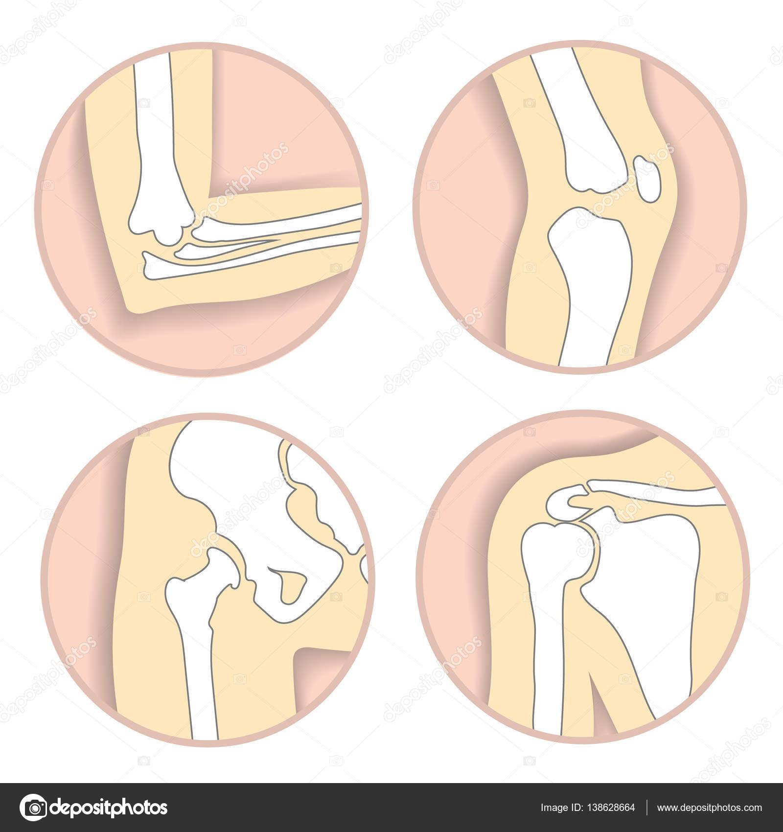 Set Of Human Joints Elbow Knee Hip Joint Skeletal Bone Structure
