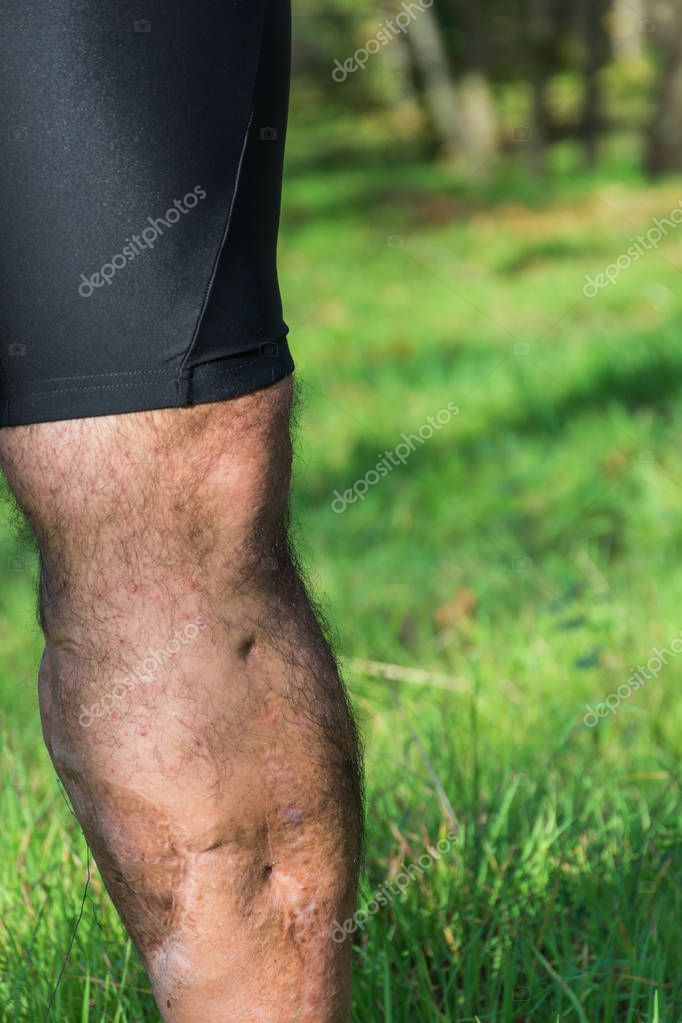 Old scar of leg injury, from car or motorbike accident.