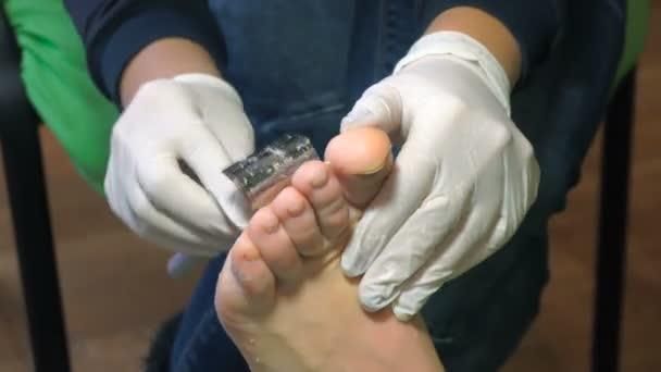 Pedikúra procedury v salonu krásy. emover mozoly na nohou