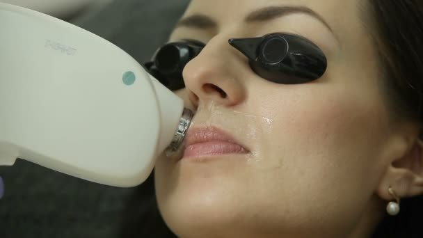 cosmetologo laser di rimozione dei capelli sul viso del paziente. Procedura di epilazione