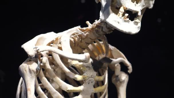 menschliche Anatomie echtes Skelett mit Rückenwirbelsäulenkrankheit
