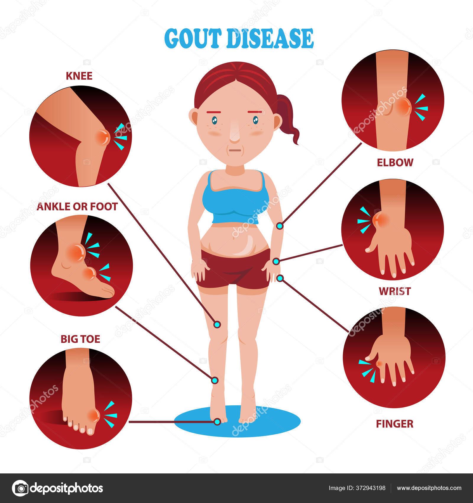 Symptome Von Gicht