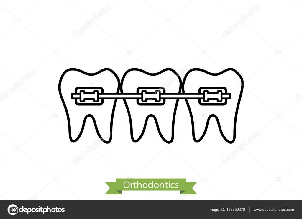 Tratamiento De Ortodoncia Dental