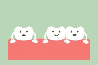 spacing teeth ( diastema )