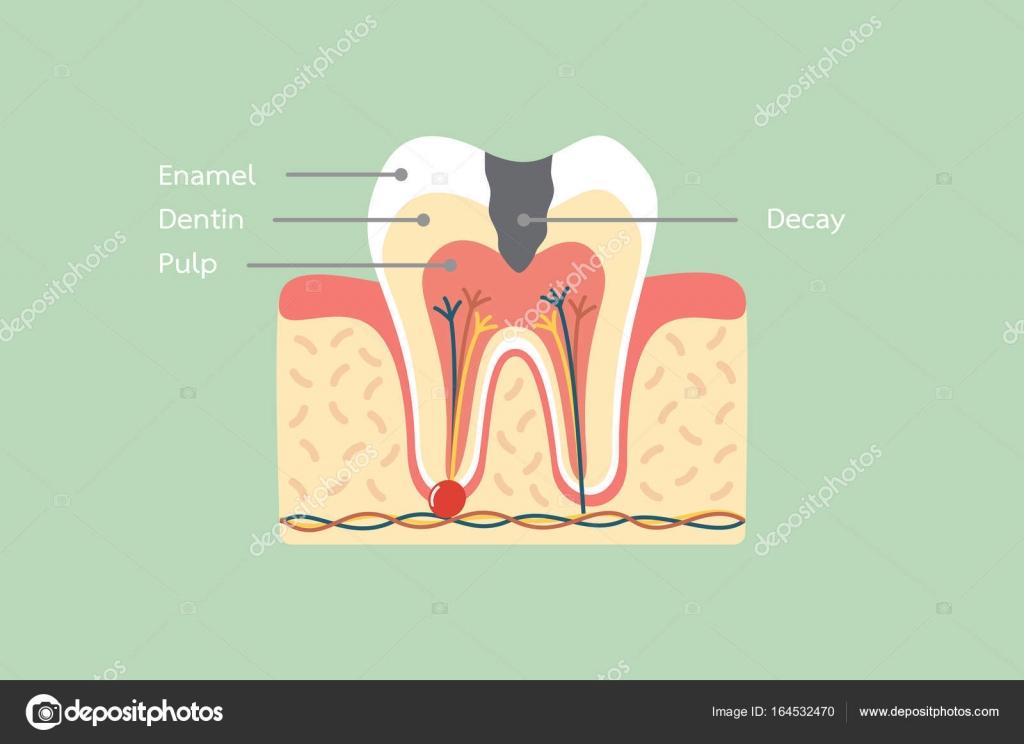 caries dentaria anatomía incluyendo el hueso y la goma con la ...