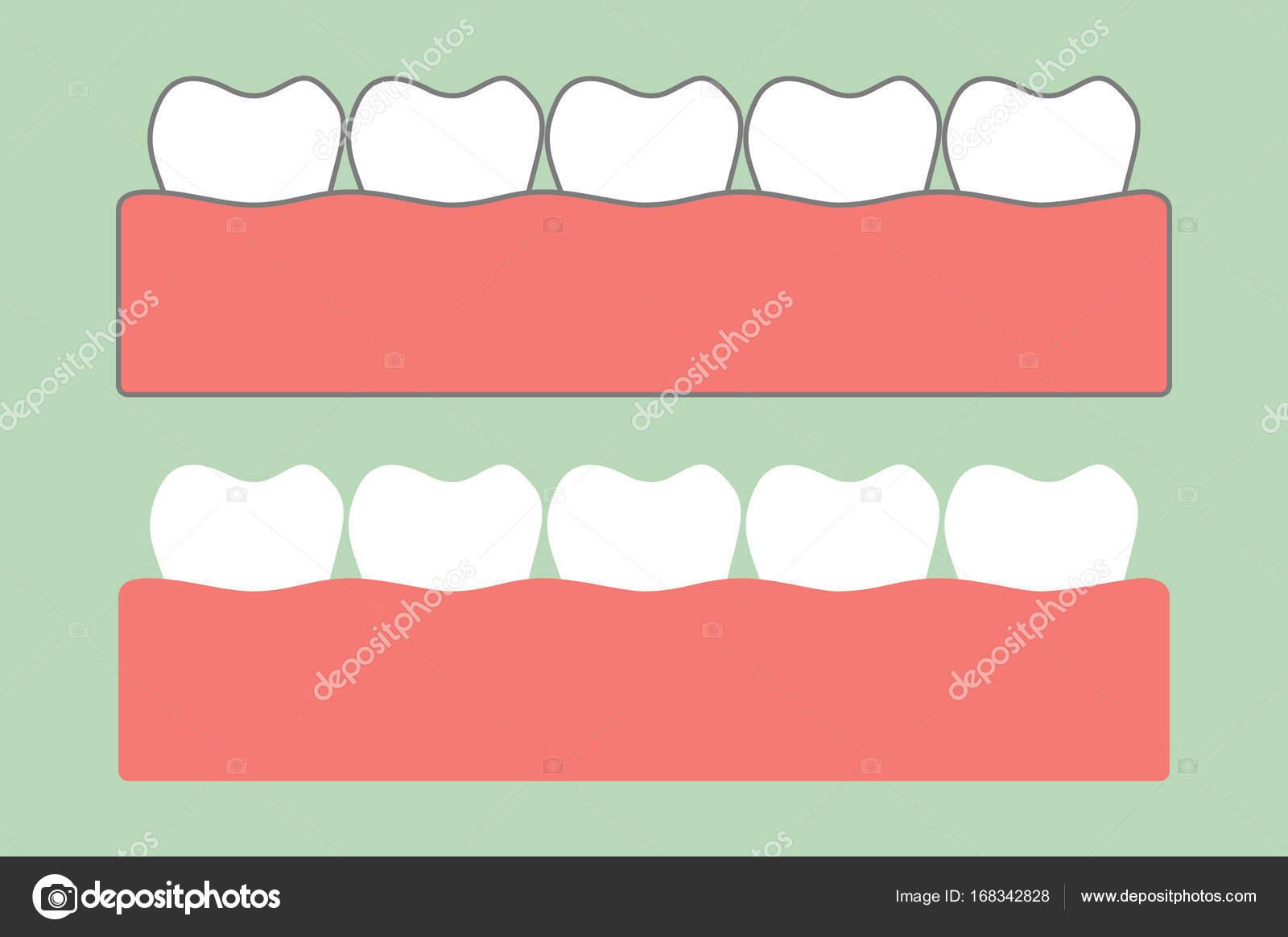 gesunde Zähne auf Kaugummi für die zahnärztliche Behandlung ...