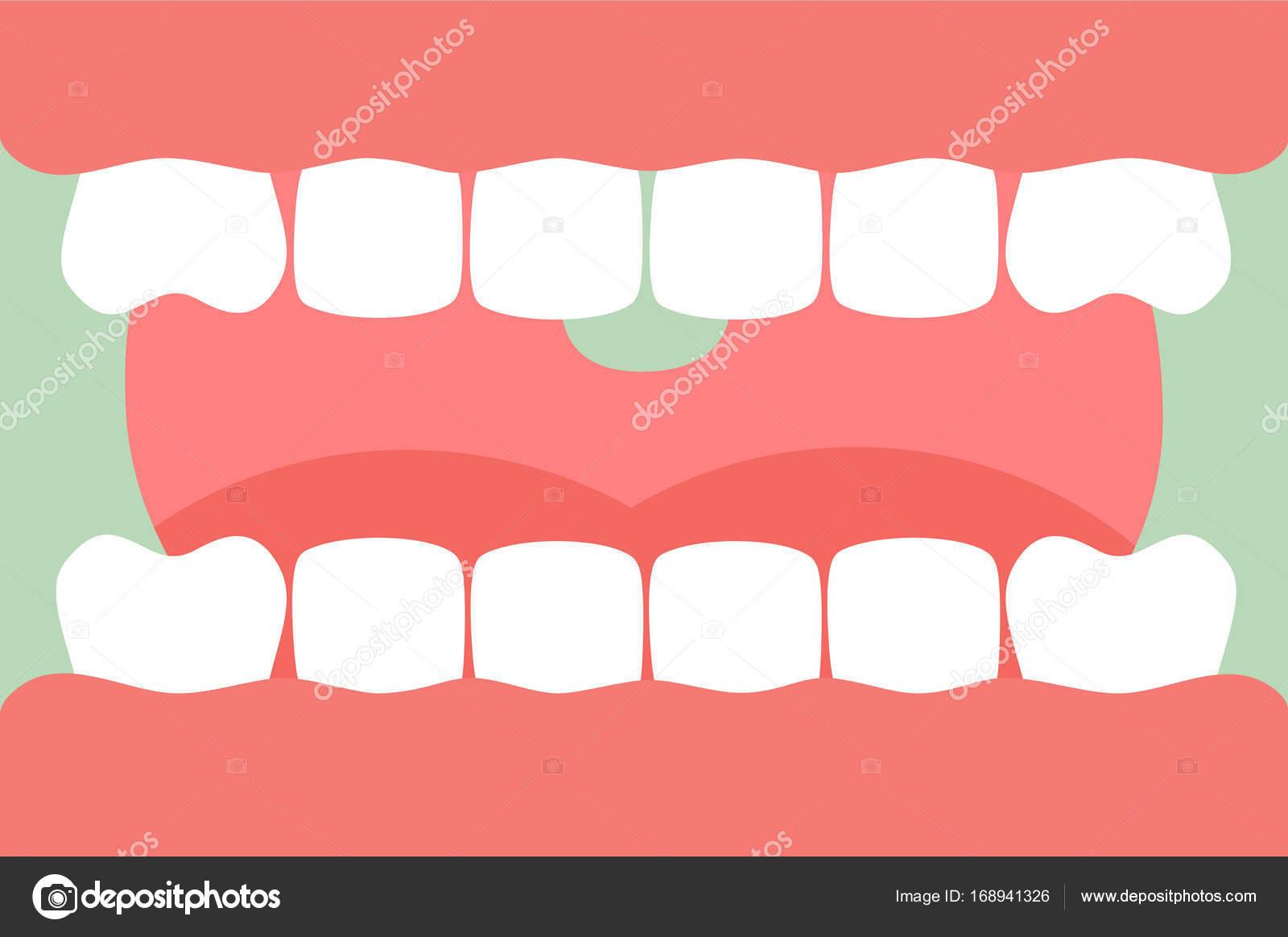 abrir la boca con dientes sanos y la lengua, cuidado dental — Vector ...