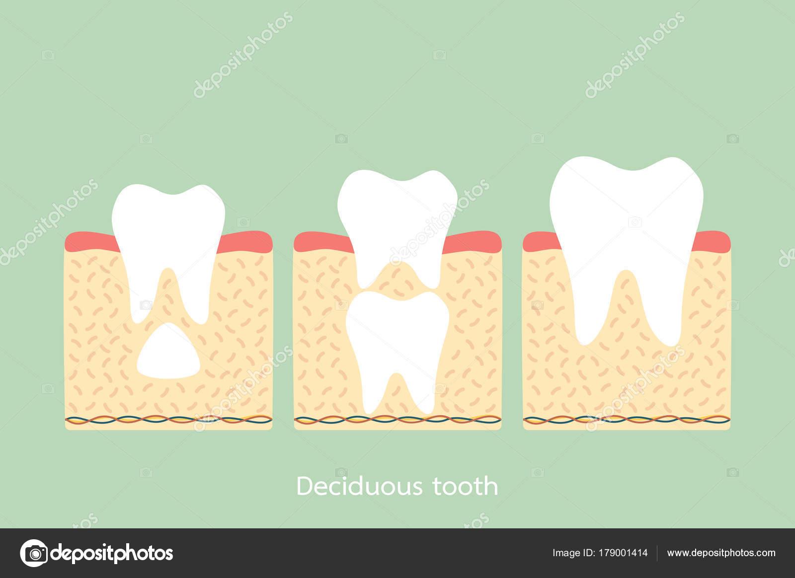 bleibenden Zahnes befindet sich unterhalb der primären Zahn ...