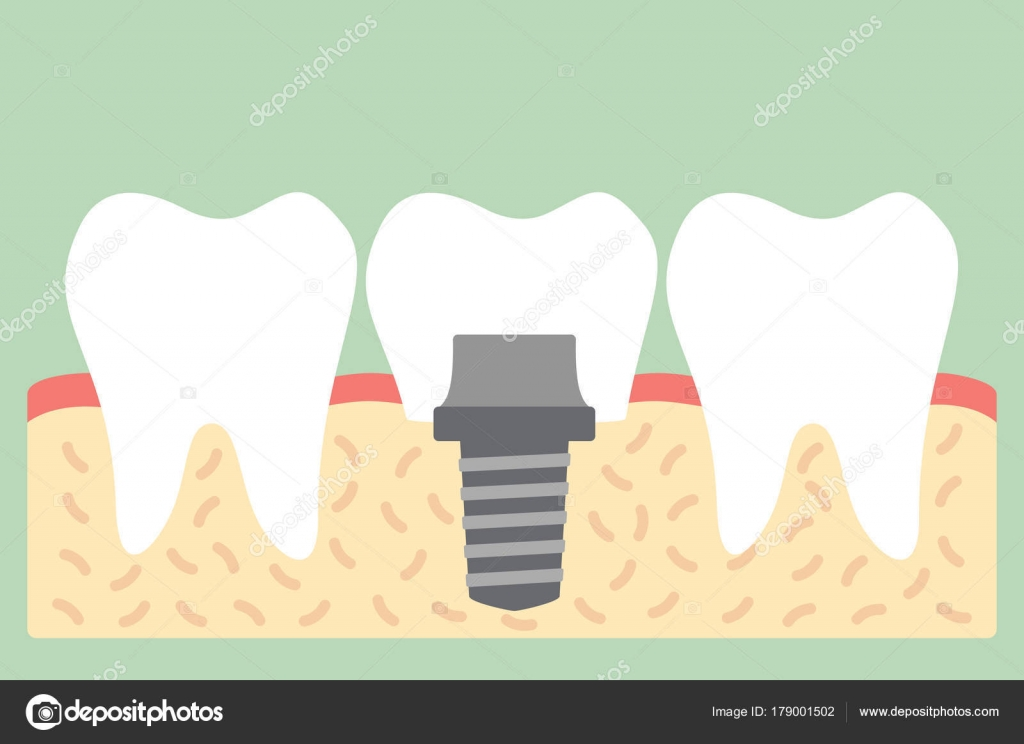Dental Implant With Crown Anatomy Structure Including The Bone And