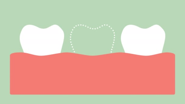 missing tooth, space in mouth - dental cartoon vector flat style render 2d footage animation, in 4K and UHD ultra high definition video format 3840x2160