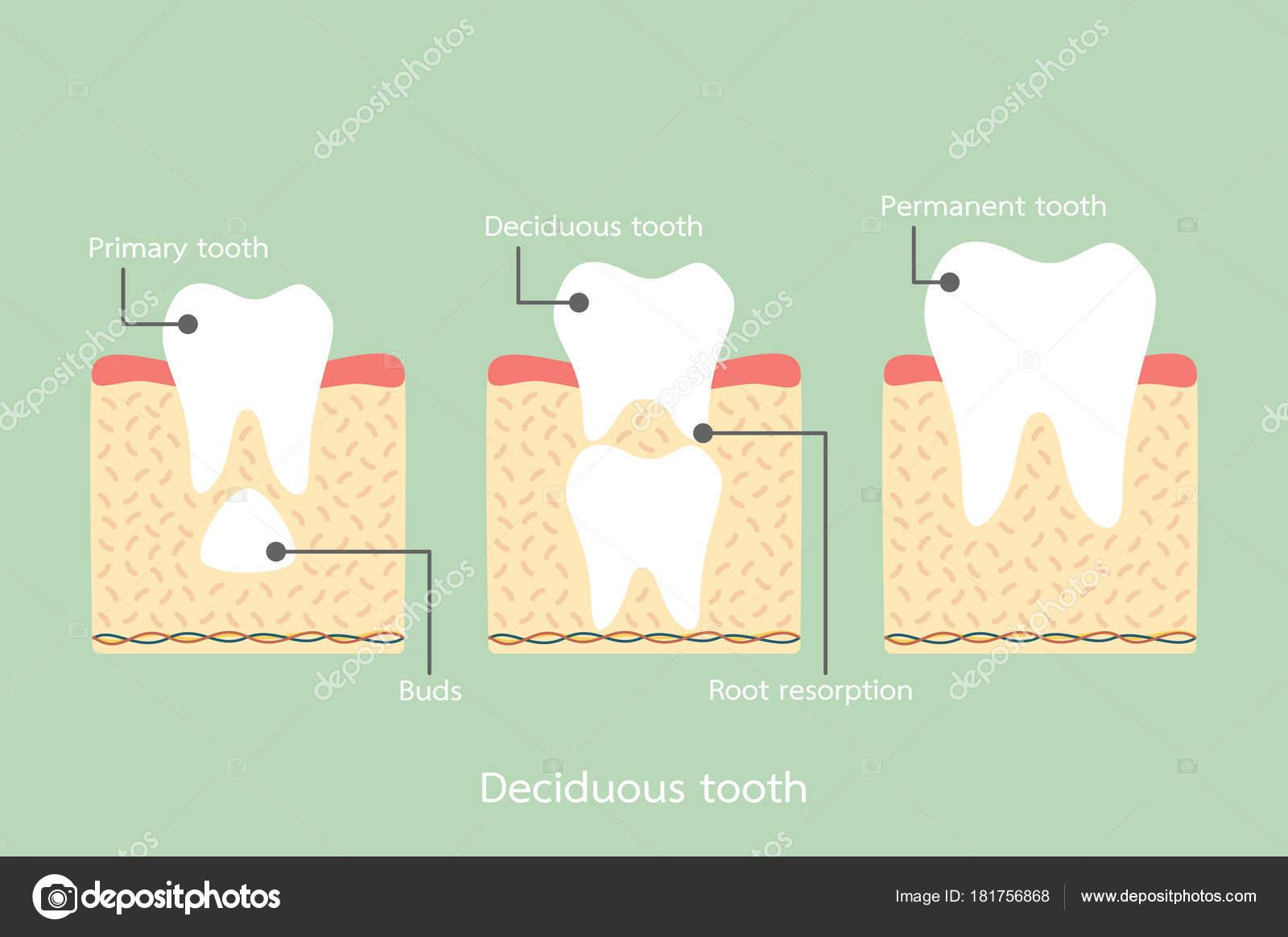 diente permanente situado por debajo del diente primario, incluyendo ...