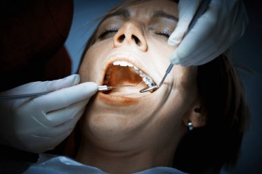 Dentist examining a patients teeth before oral surgery at the de