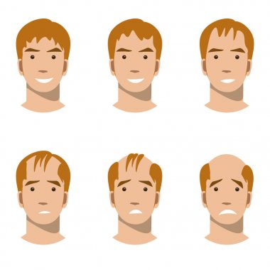 Stages of hair loss and hair treatment
