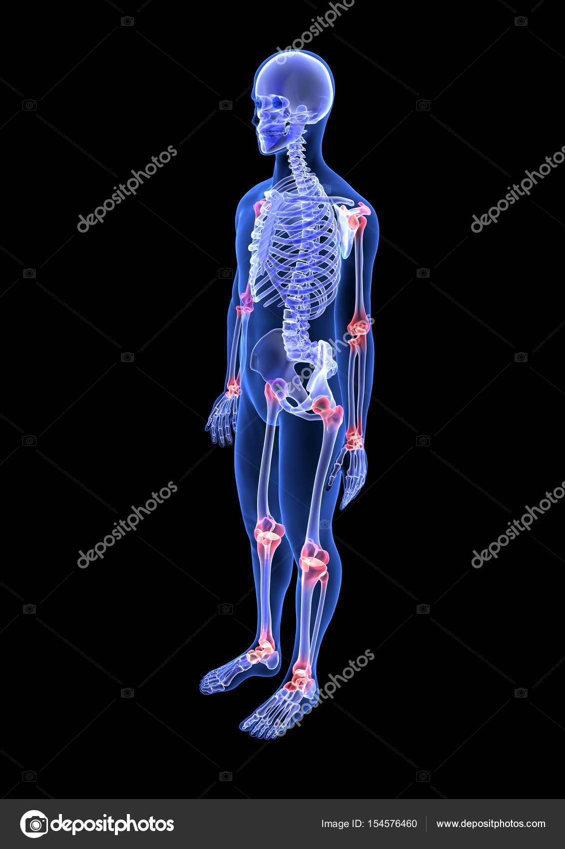 Gelenkschmerzen rasch behandeln, Chronifizierung verhindern