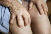 Fotografie Starší žena trpí bolestí kolena