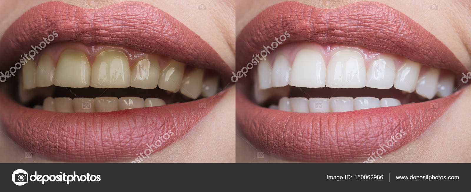 Clareamento No Dentista Estomatologia E Clinica Dentaria Conceito