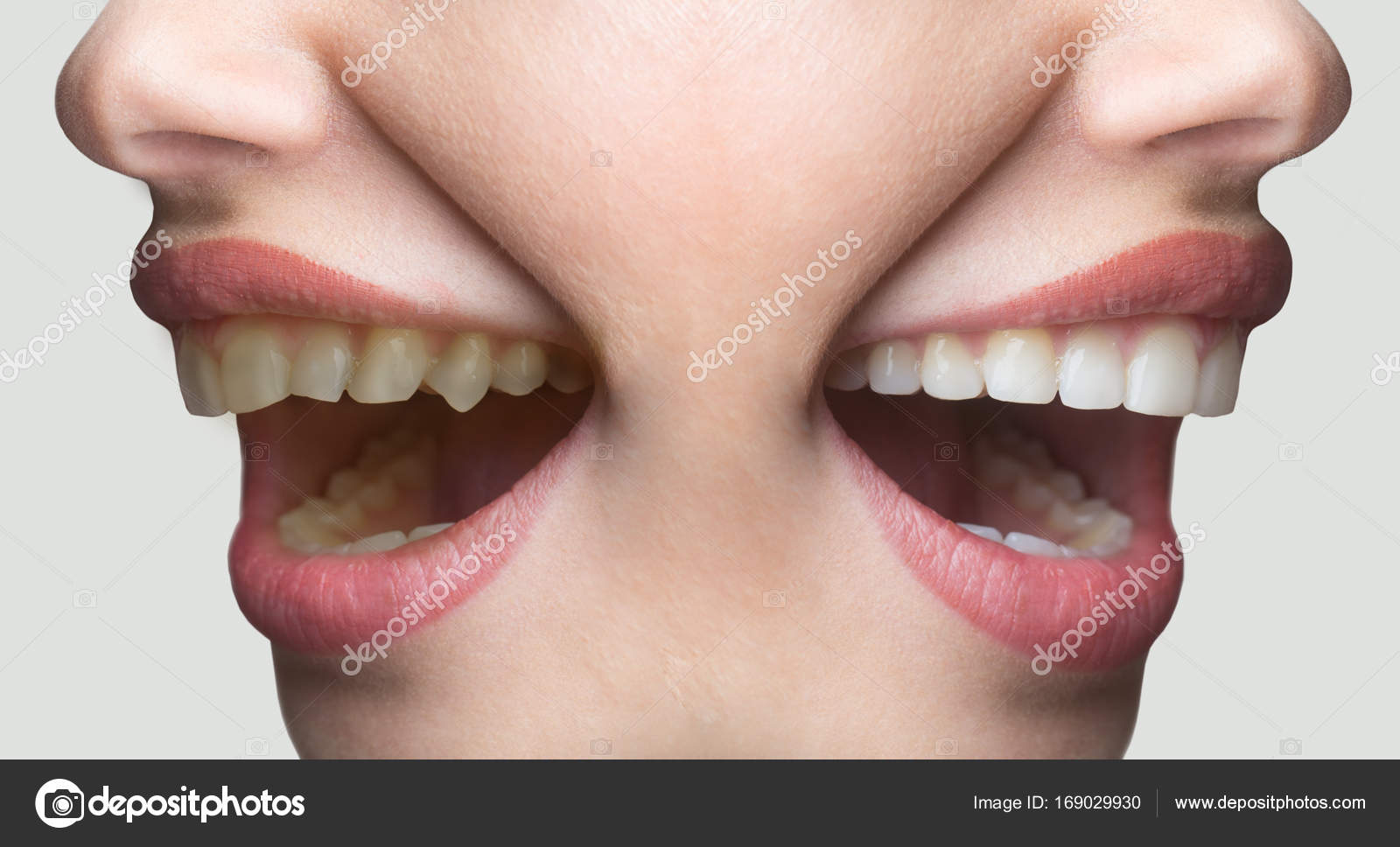 Dentistry White Smile Concept Before And After Teeth Whitening